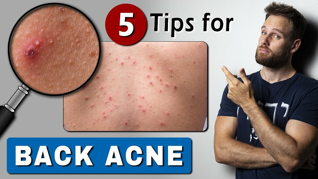 Video poster How to GET RID of BACK ACNE  fast & easy!