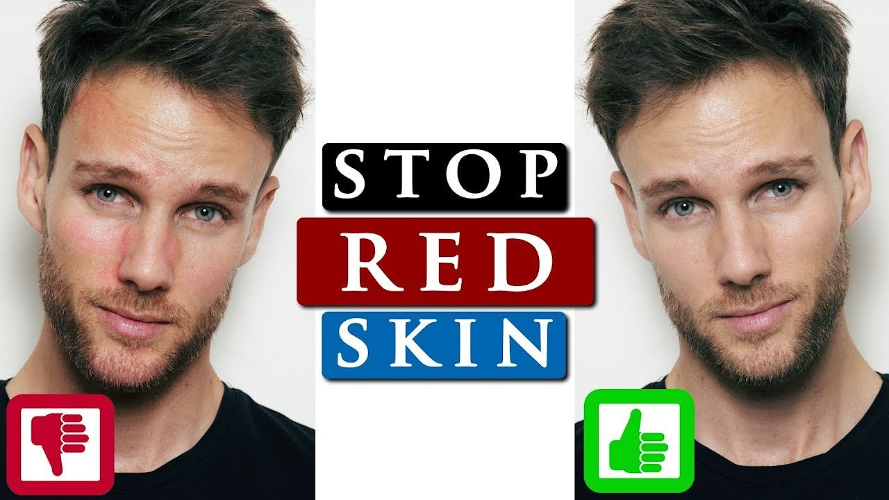 Video poster How to get rid of REDNESS on your FACE | 3 QUICK SKIN CARE TIPS