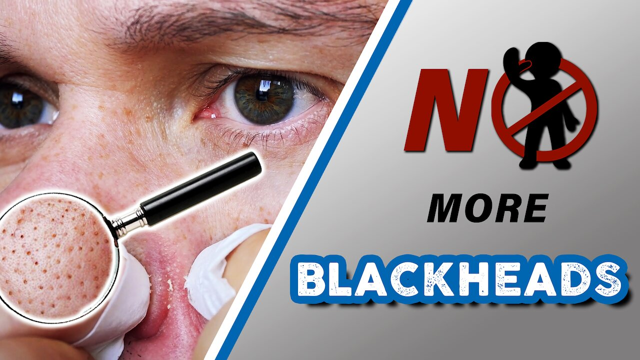 Video poster How to GET RID of BLACKHEADS for men