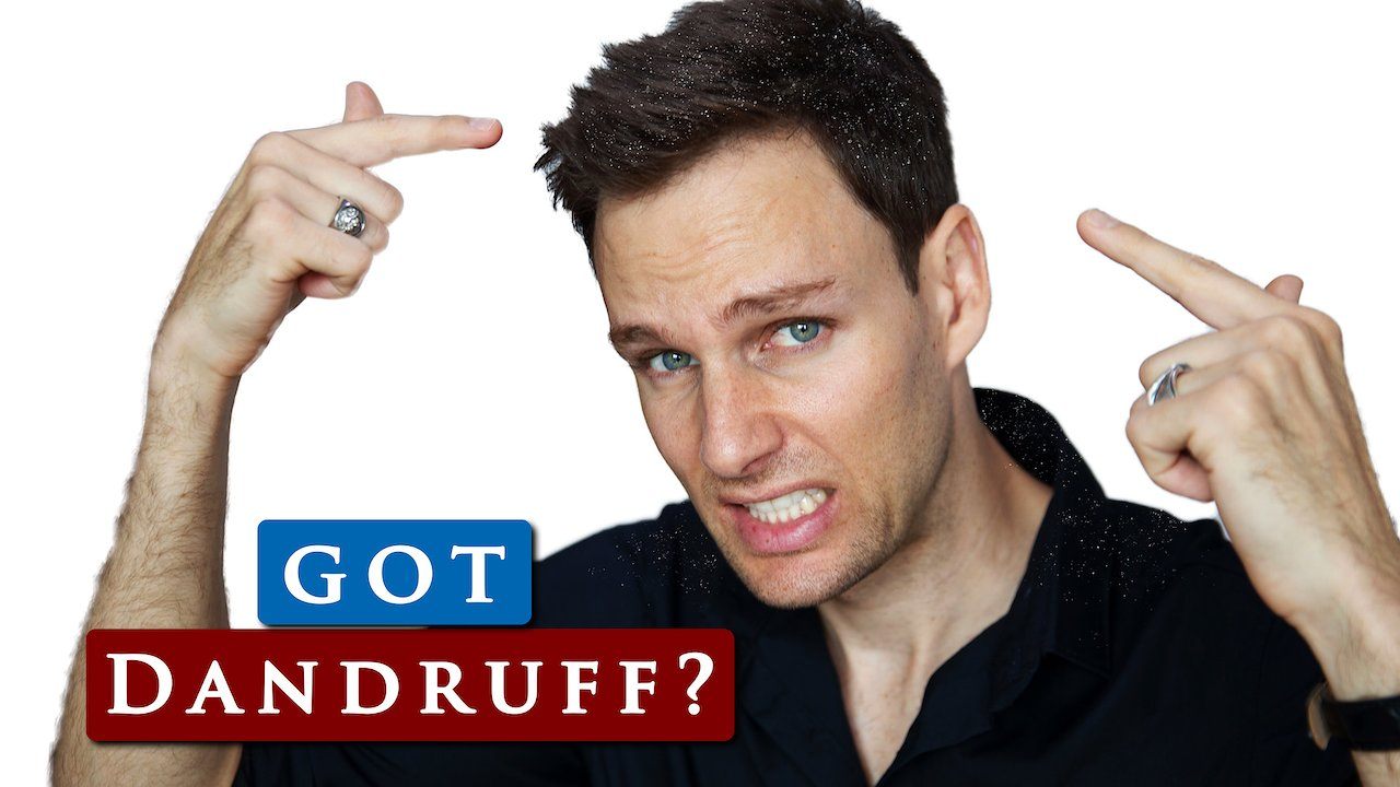 Video poster What causes DANDRUFF & how to GET RID OF IT