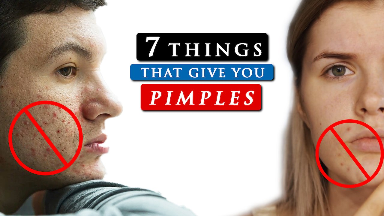 Video poster What causes PIMPLES on your face and how to GET RID OF IT